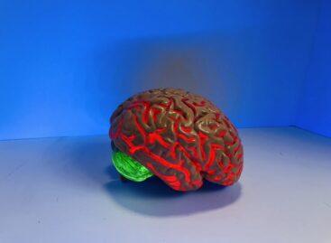 Cerebral Palsy – Management