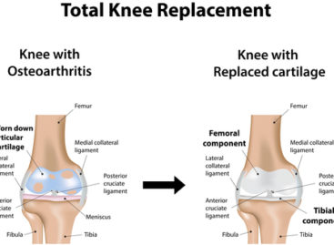 What to Expect from Knee Replacement?