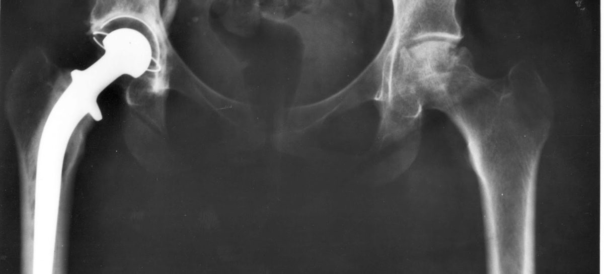 Hip Replacement [Part – 1]