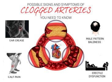 4 Silent Signals for Clogged Arteries