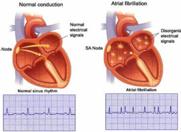 Know About Cardiac Arrhythmia – Irregular Heartbeat