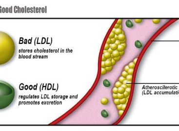 HDL and LDL. Do you know the difference?