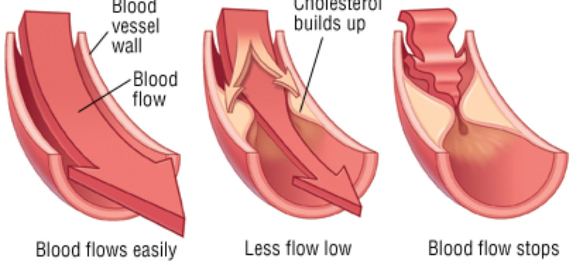 Causes of Blood Flow Obstruction in your body