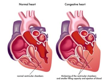 The different stages of Heart Failure