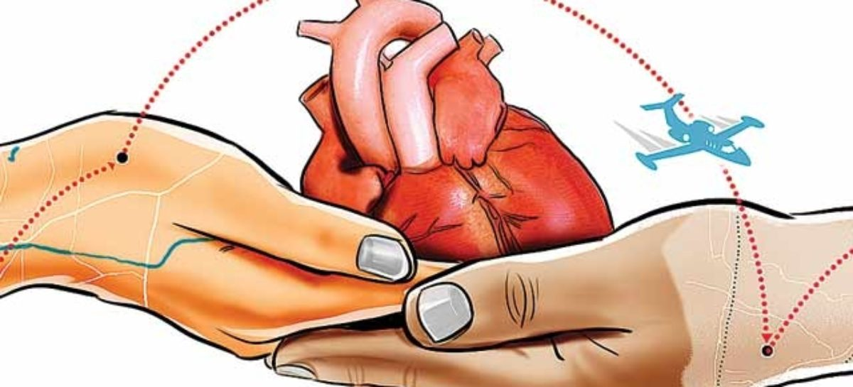 Heart Transplantation: Questions you always wanted to ask