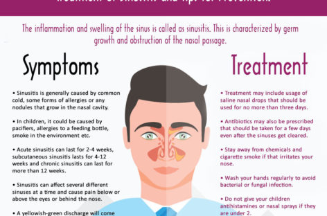 Is Your Sinus Bothering You? Treatment of Sinusitis and Tips for Prevention. – Infographic