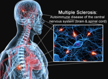 Living with and Managing Multiple Sclerosis