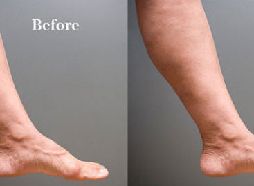 Varicose Veins – Causes And Treatment