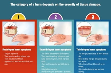 Fire Accident – Emergency Procedures – Infographic
