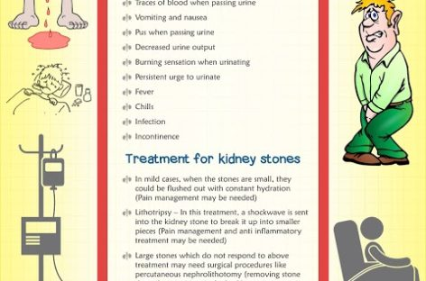 Kidney Stone Causes, Symptoms and Treatments