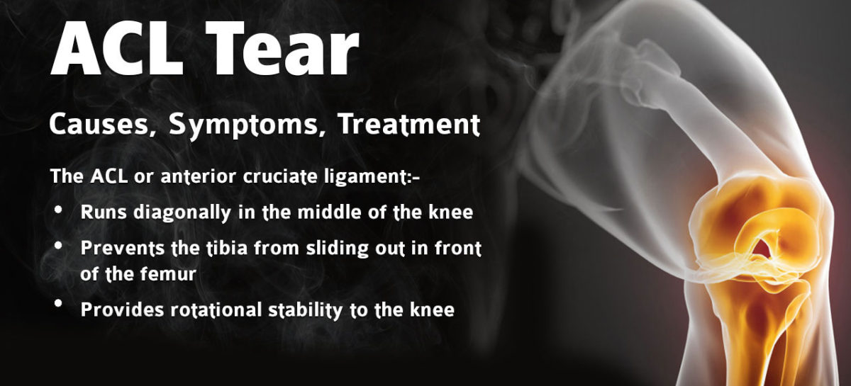 ACL tear – Causes, Symptoms, Treatment