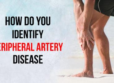 How do you identify Peripheral Artery Disease?