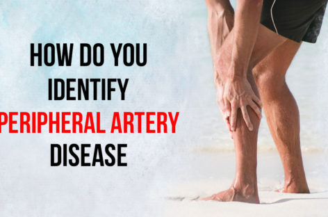 How do you identify Peripheral Artery Disease?