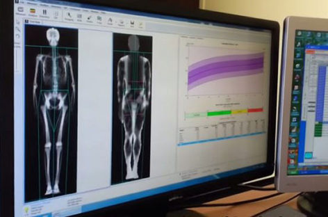 What is a Dexa Scan and how is it done?