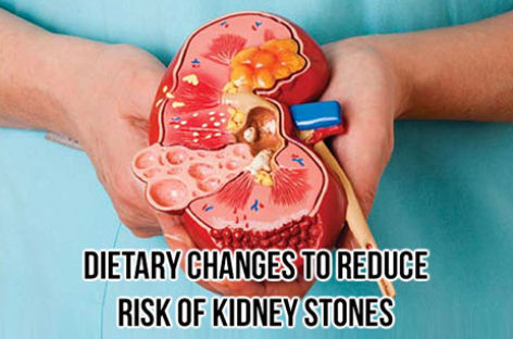 Dietary changes to reduce risk of kidney stones