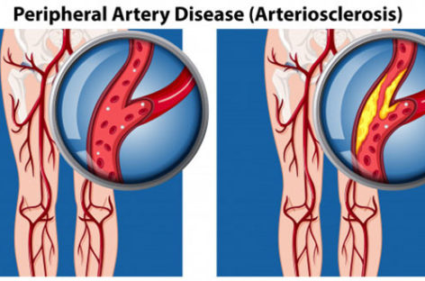Symptoms and Treatment of Peripheral Artery Disease
