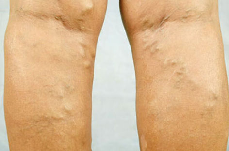 Treatment for Varicose Veins – Sclerotherapy