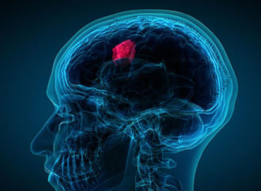 Recognize the warning signs of brain tumour, save a life