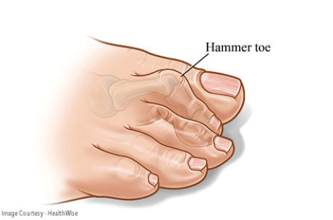 Hammertoe can be life-changing, treat it in time