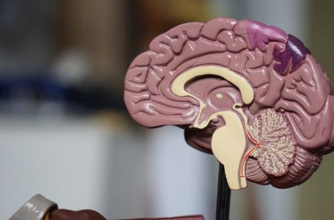 How to deal with Traumatic Brain Injury