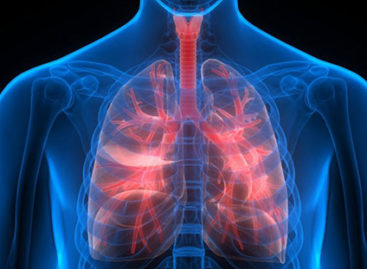 Complications arising out of Respiratory Disease