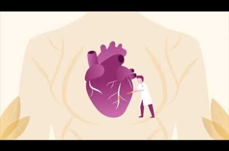 Laser Angioplasty: A cutting edge procedure for a healthy heart