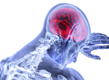 All About Brain Aneurysms